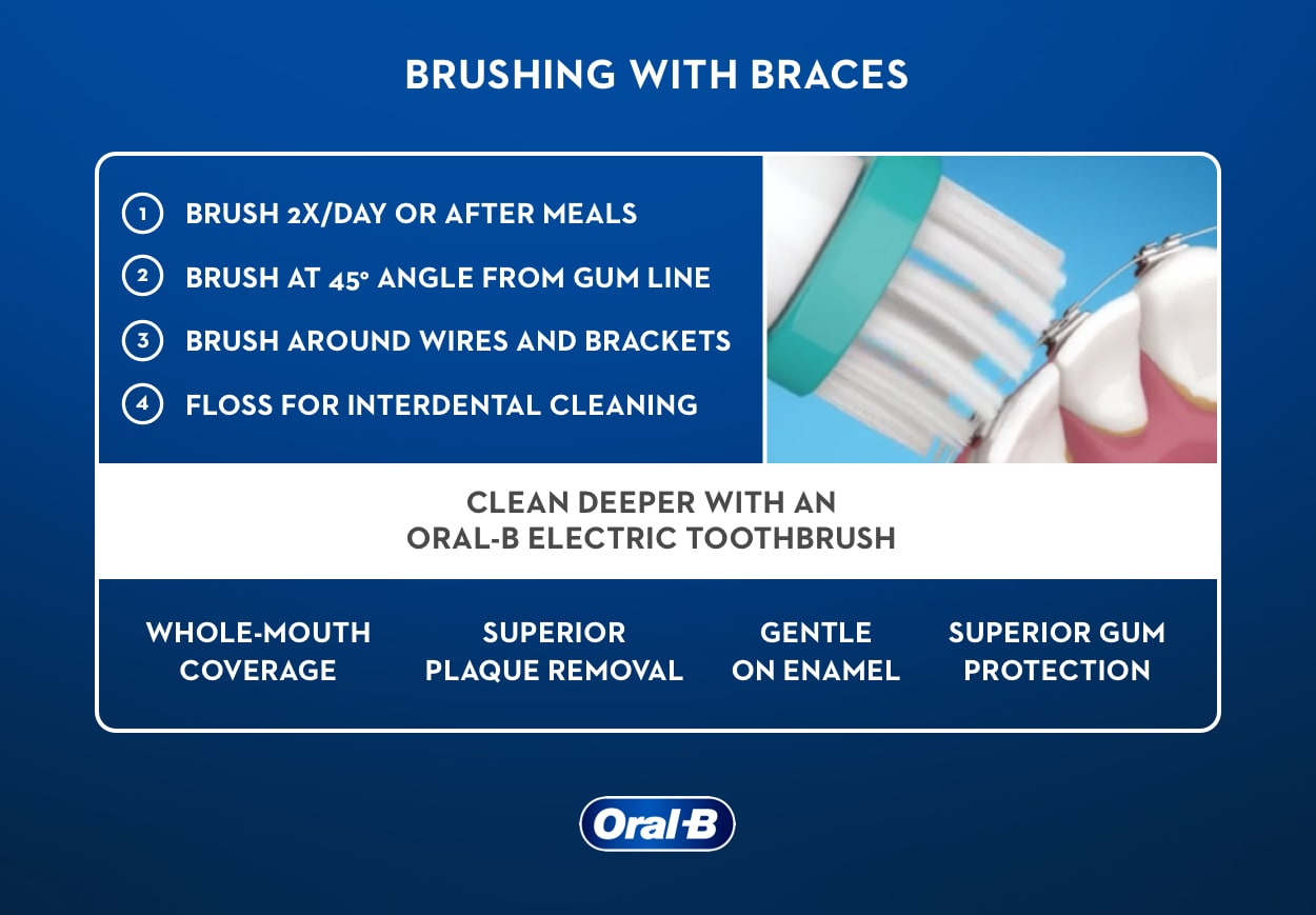 How to Brush Your Teeth and Floss With Braces