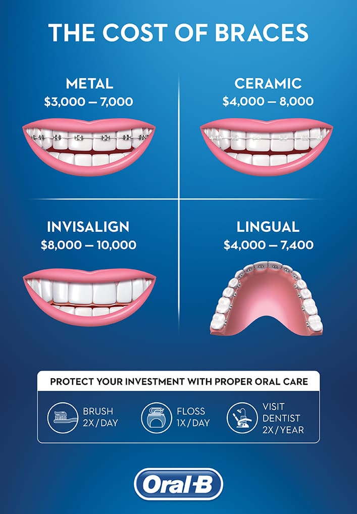 How Much Do Braces Cost? - Oral-B