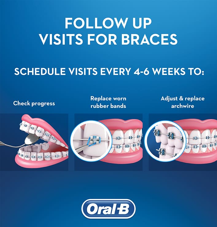 Braces Your Final Appointment Oral B